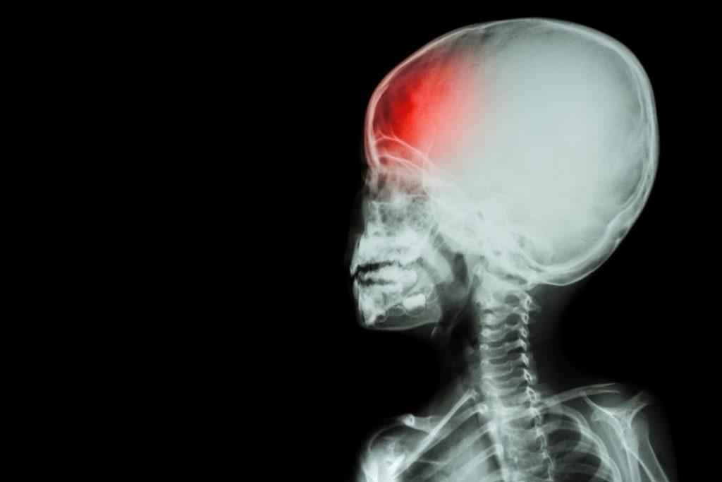 seizure disorder Dysautonomia