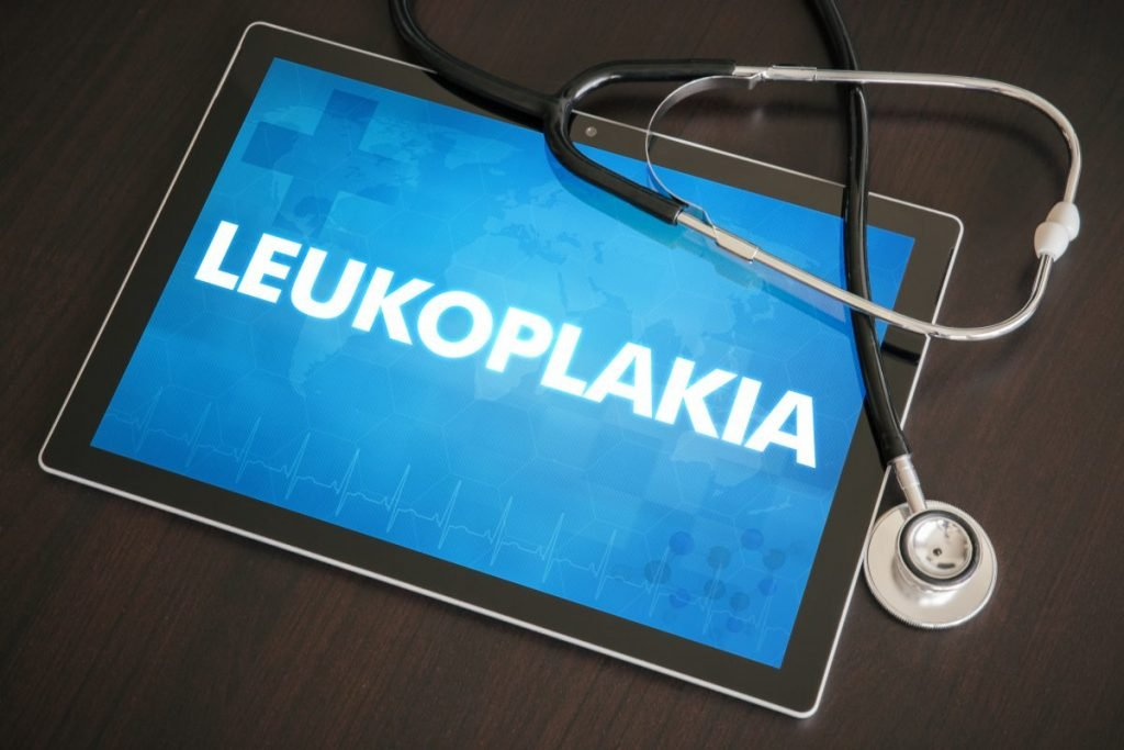 leukoplakia, leukoplakia symptoms, patches in mouth