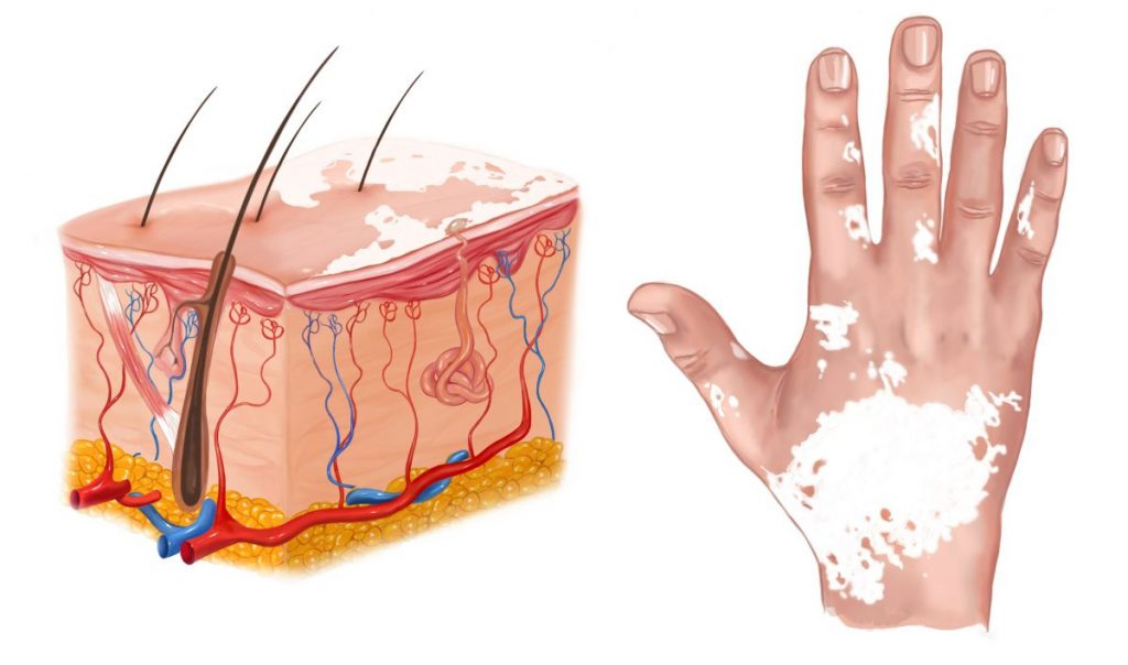 vitiligo melanin