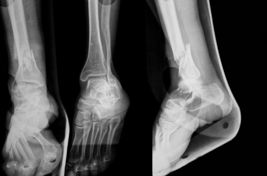diagnosis charcot foot