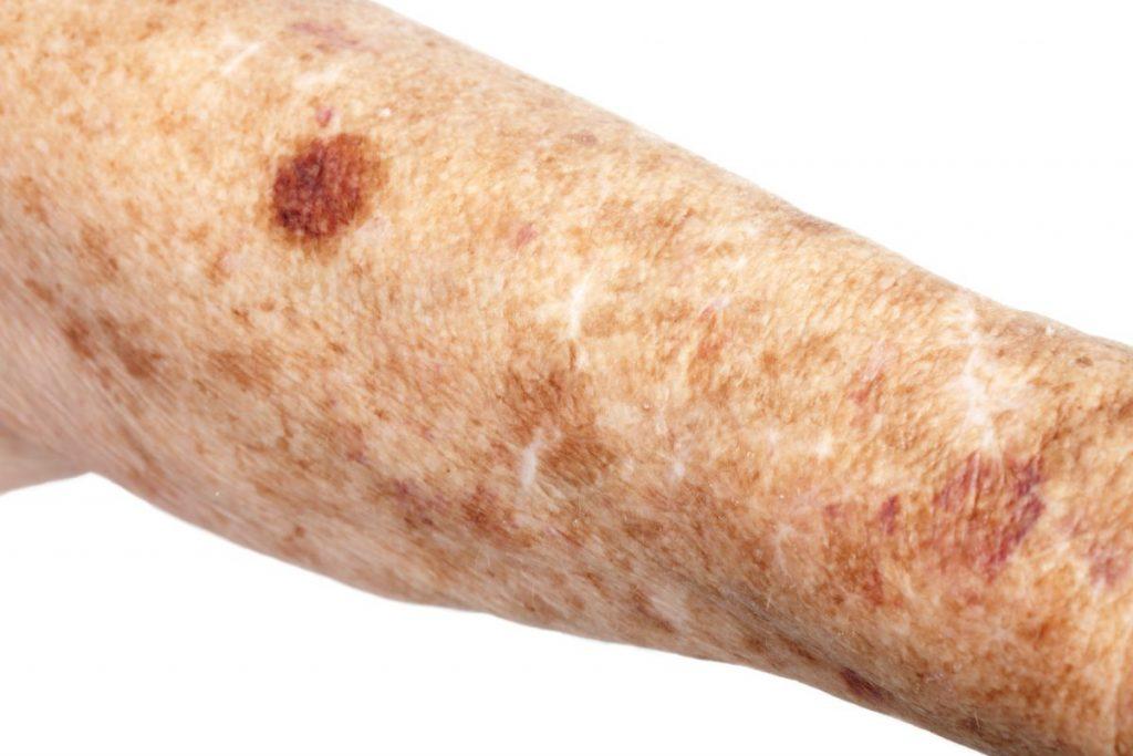 Liver spot symptoms of