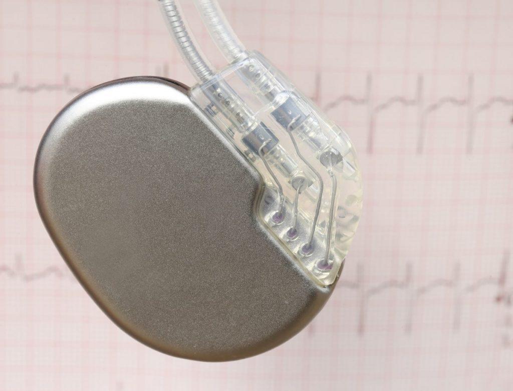 Arrhythmias Fainting Syncope Pacer