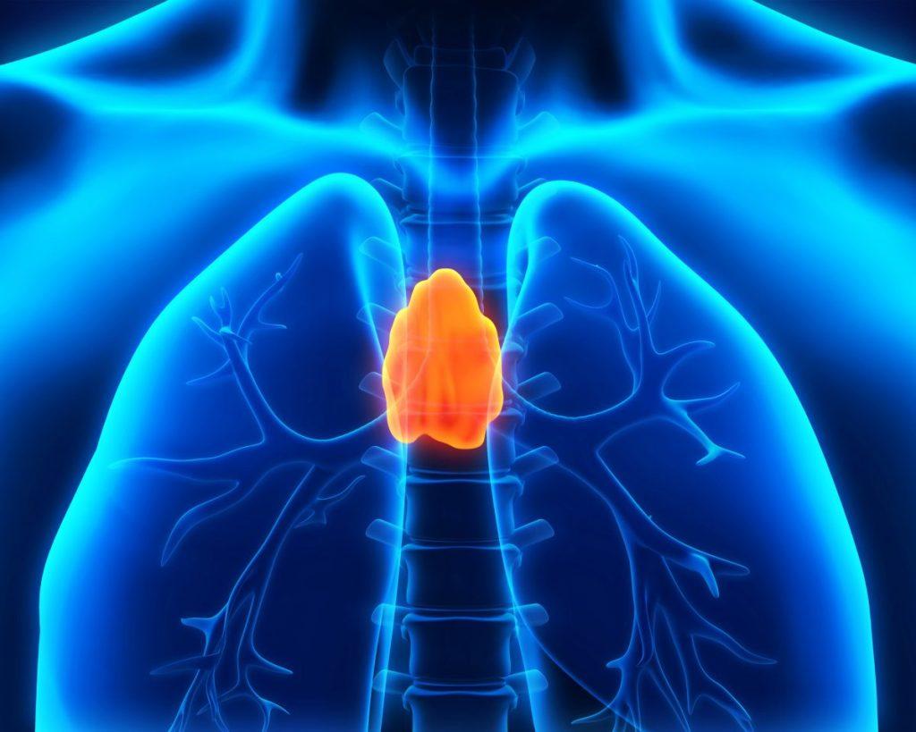 thymus thymoma