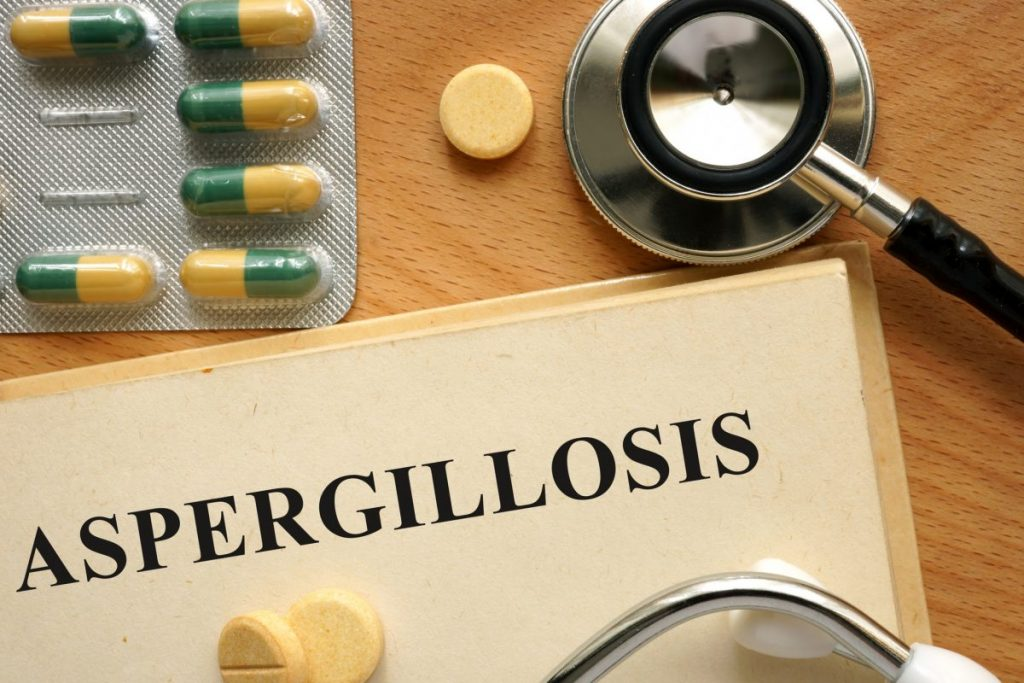 aspergillosis diagnosing