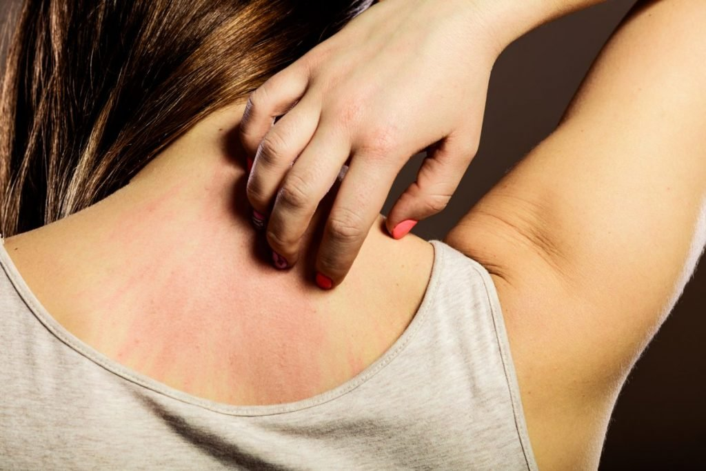 signs and symptoms Acanthosis nigricans