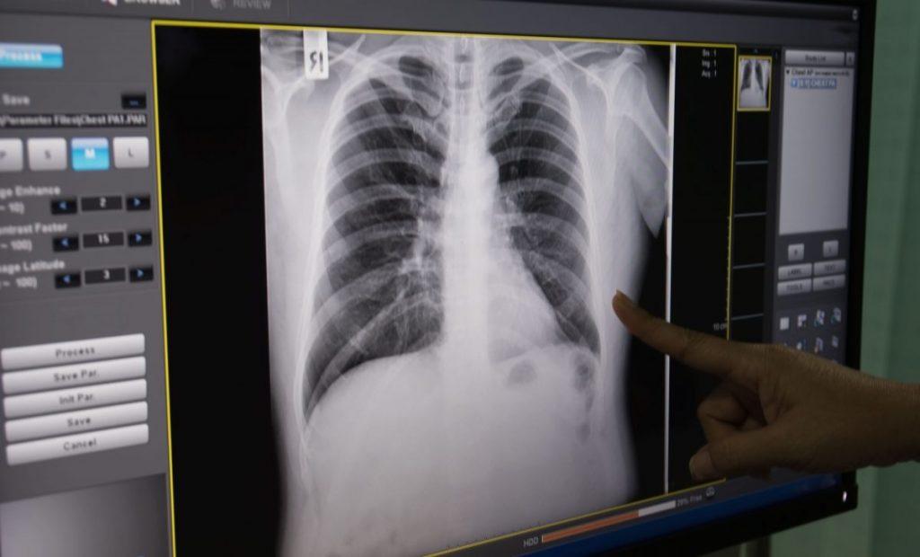 diagnosis thymoma