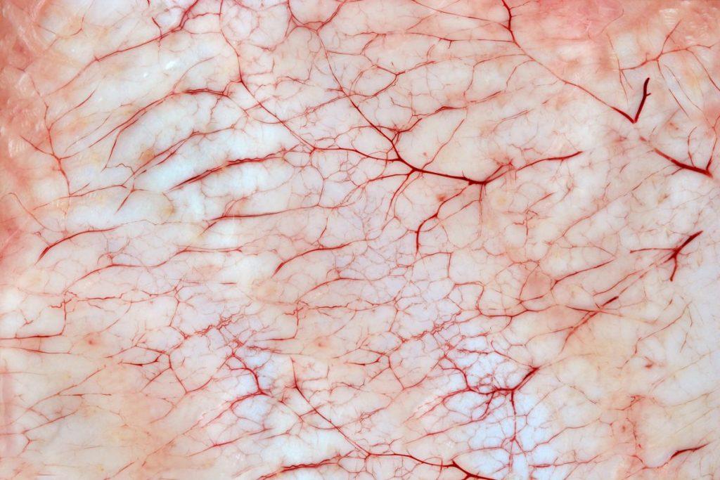 Hemangiopericytoma zimmerman tumors tumor