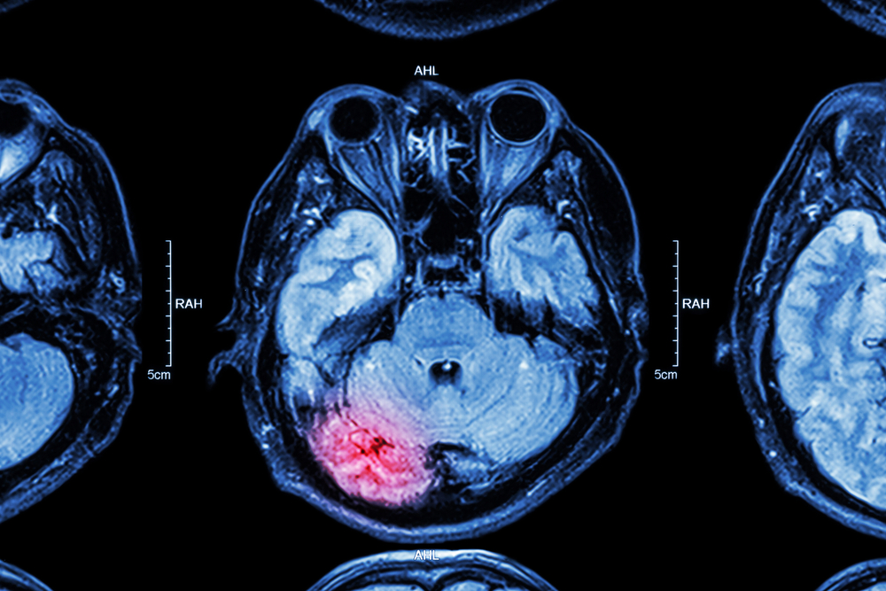 alexithymia and mental health