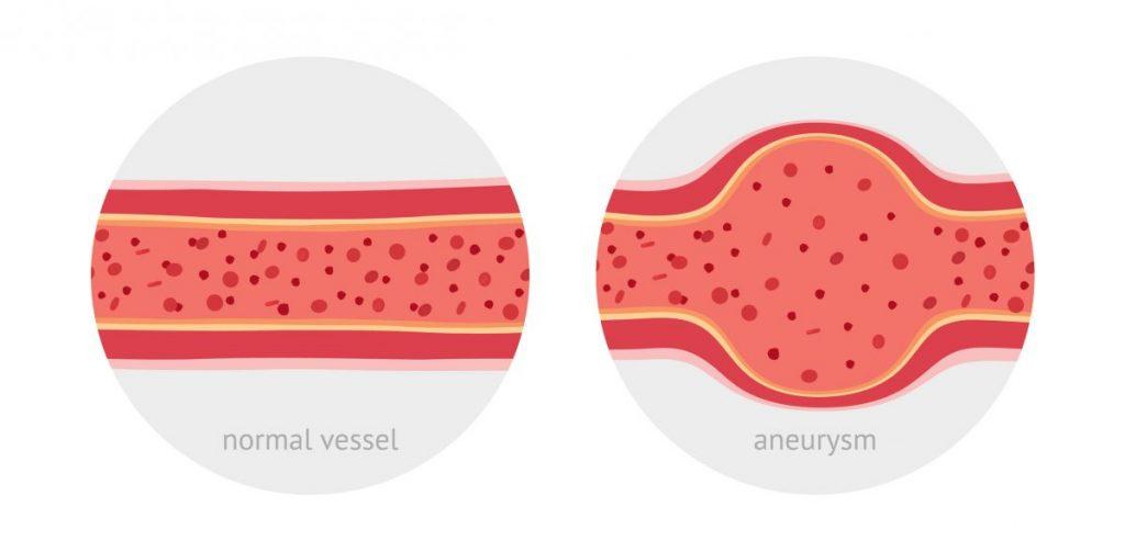 rasmussen aneurysm tuberculosis