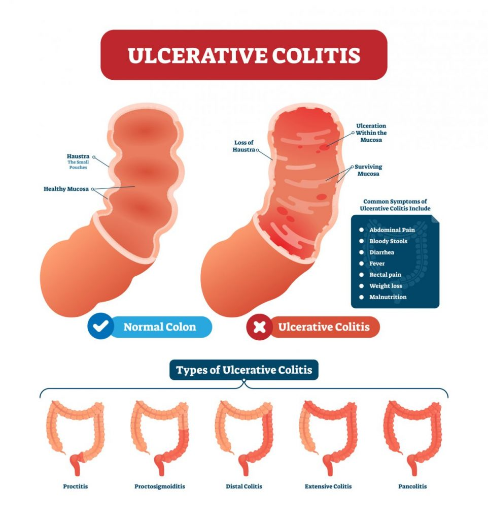 Gastrointestinal stromal tmorulcerative colitis colon-cancerGISTs