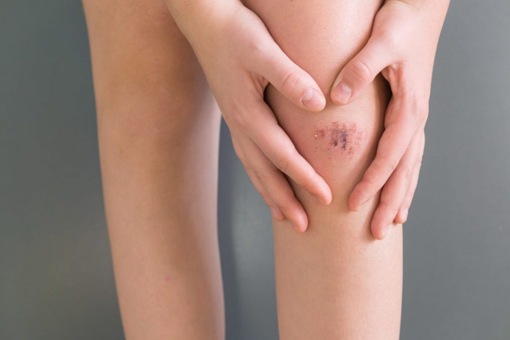 abrasions wounds infection scratching