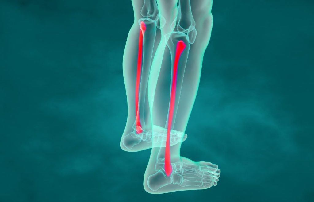 shaft fibula xray