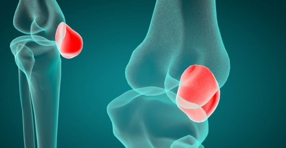 The Patella: Support for the Whole Body