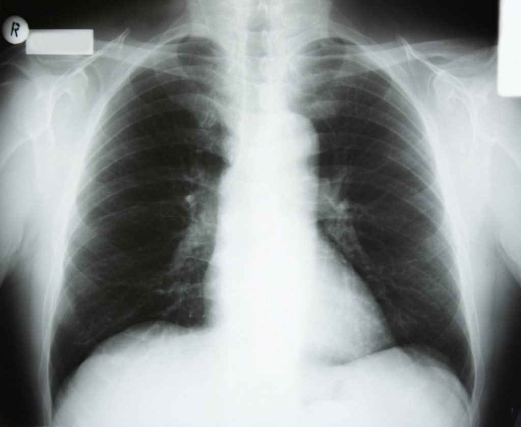 X-ray of chest and diaphragm