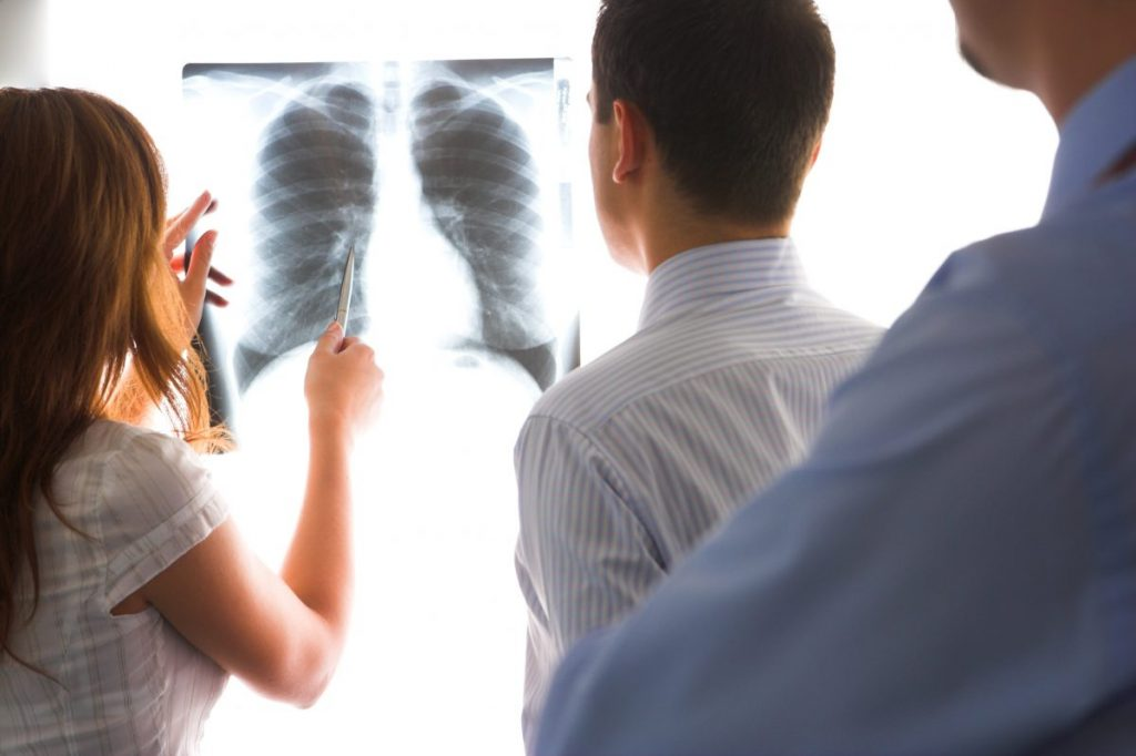 Chest X-Ray Tests