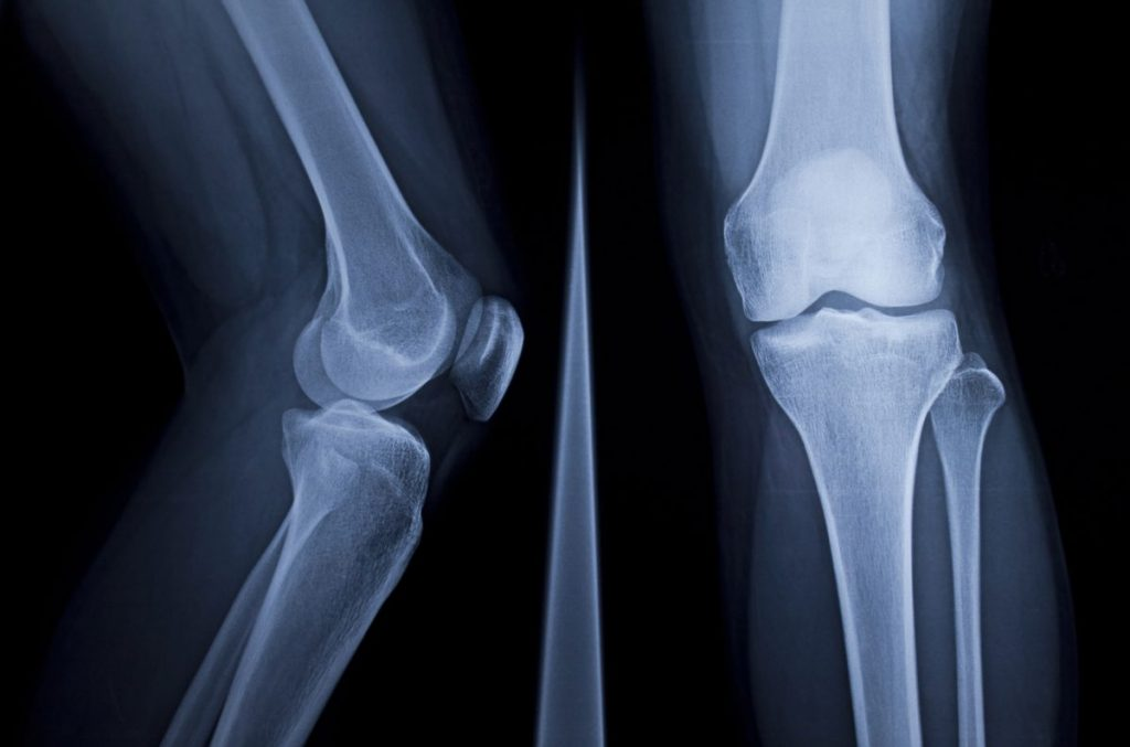 fibula xray surfaces