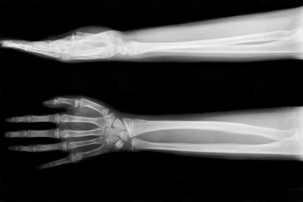 xray membrane bones