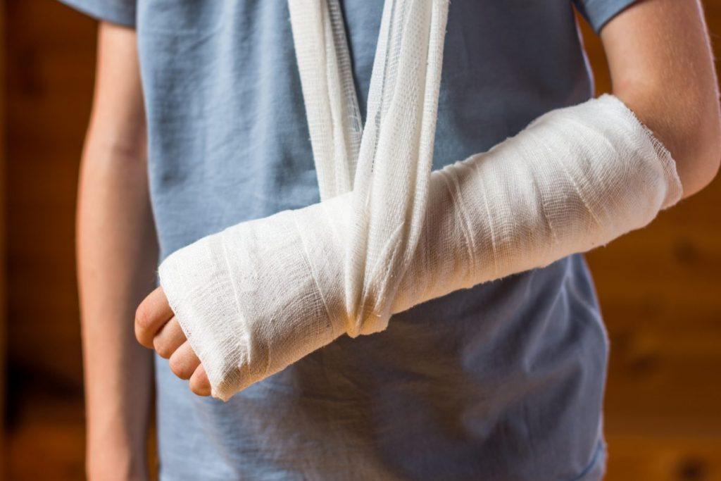 radius fracture cast
