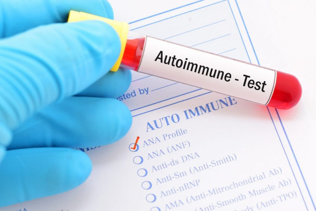 blood autoimmune test