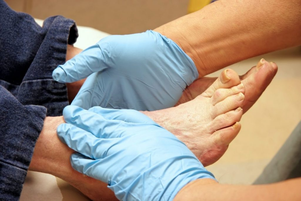podiatrist foot and toe exam