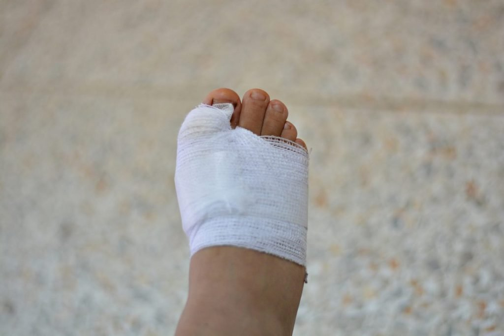Wound Care and Calciphylaxis