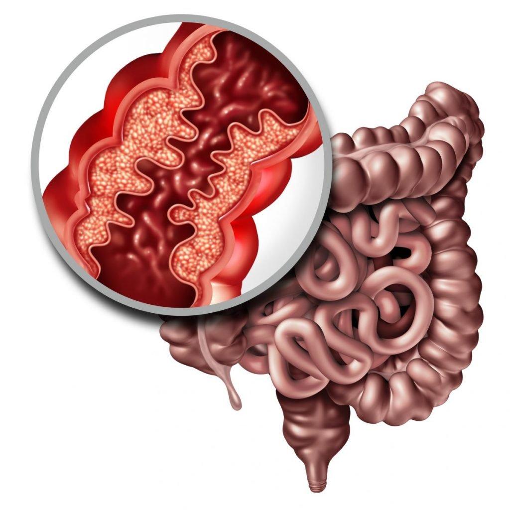 glutathione intestines