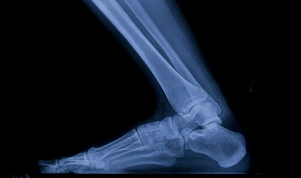 fibula ankle tibia