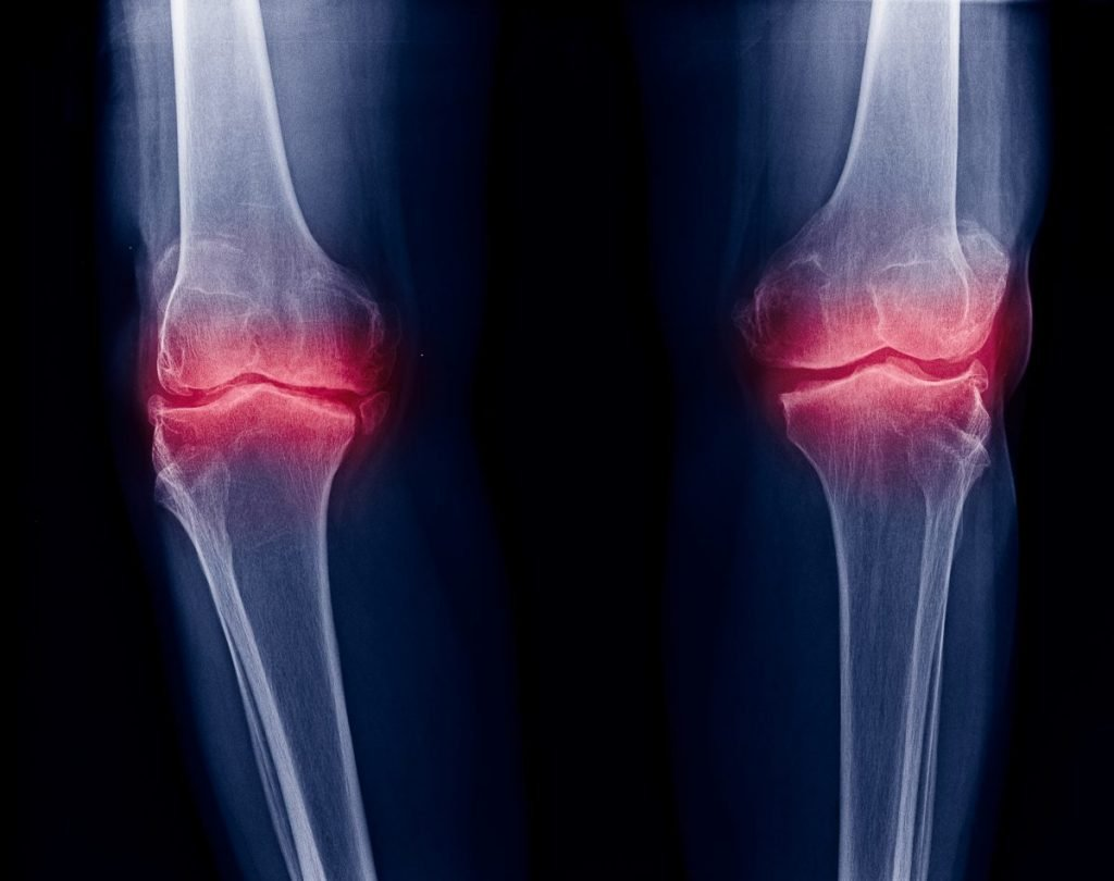 x-ray image of knee joint pain