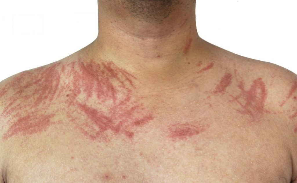 Man's shoulders covered with welts