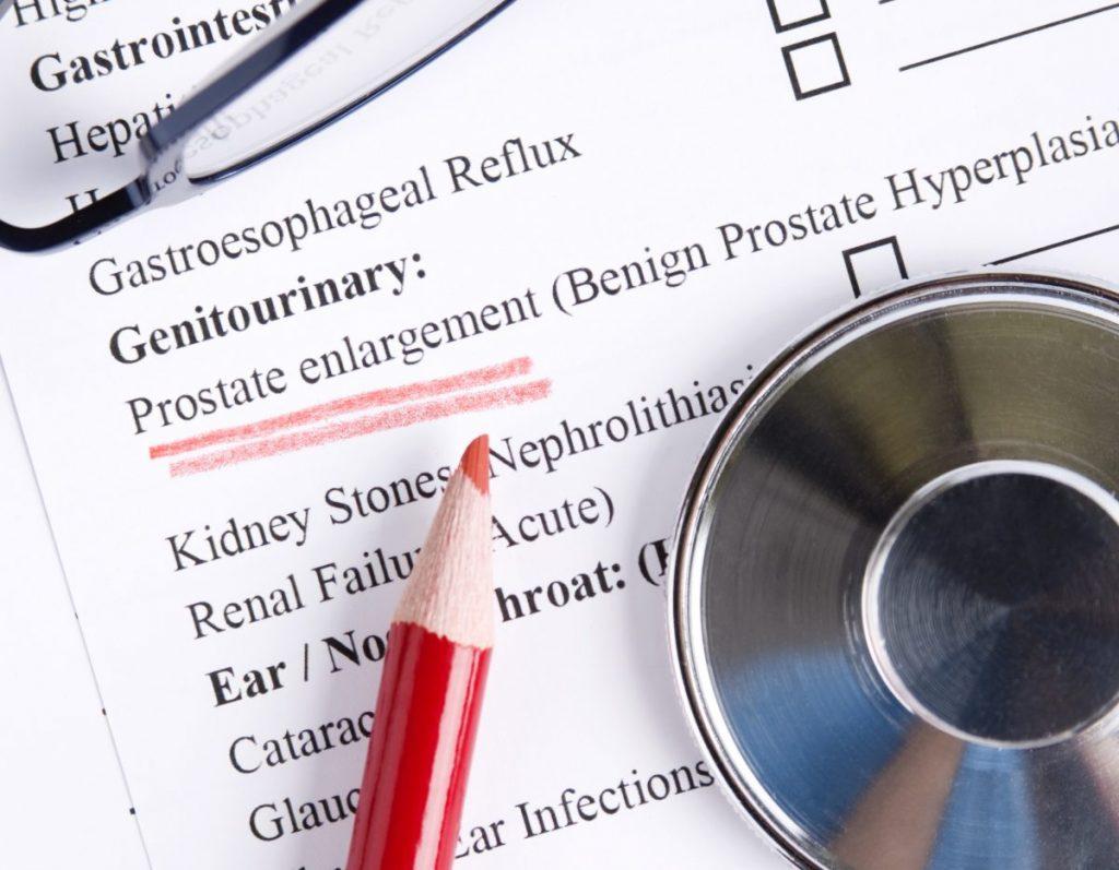 Enlarged Prostate Changes