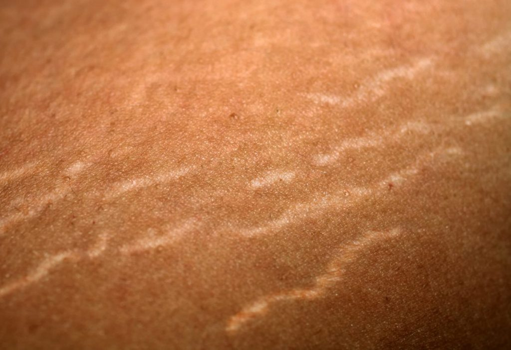 Stretch Marks Skin