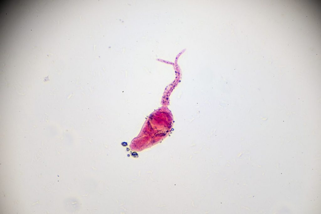 schistosomiasis helminth parasitic worm