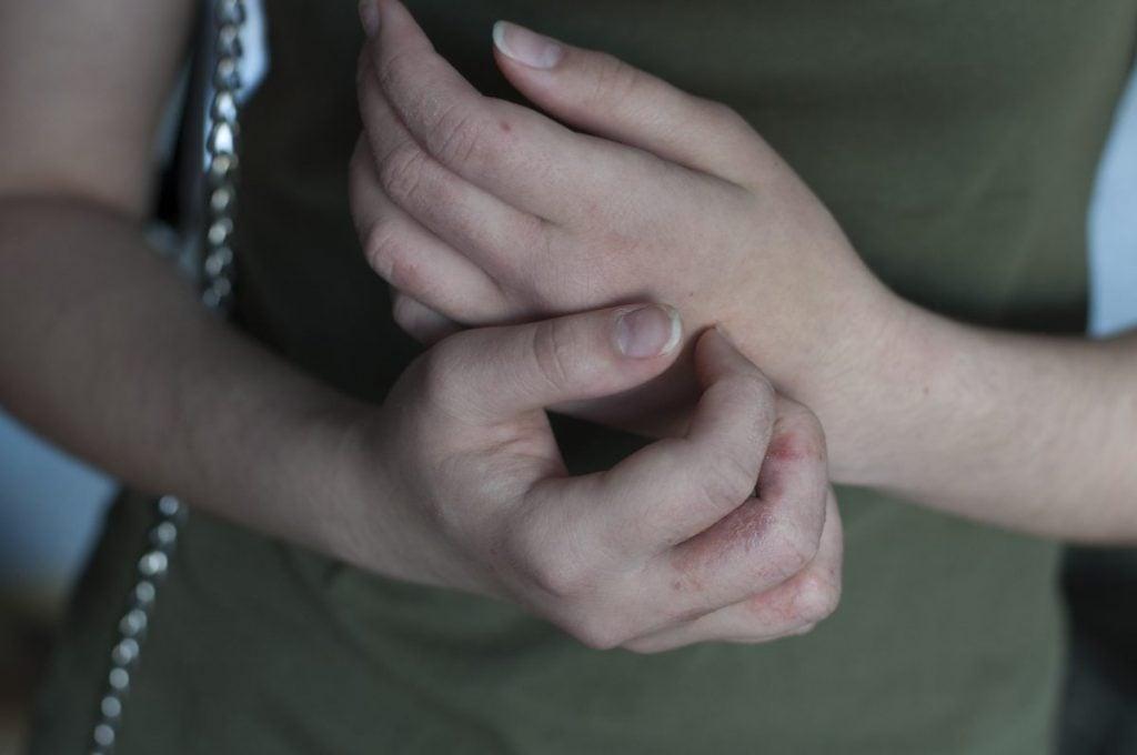 Hands Dyshidrosis Eczema