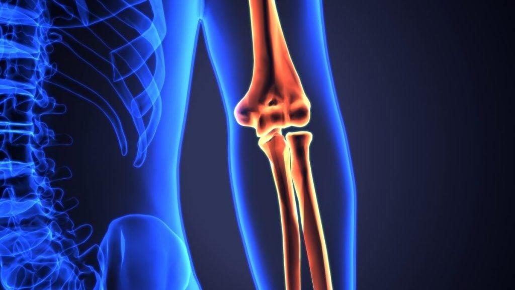 distal end elbow