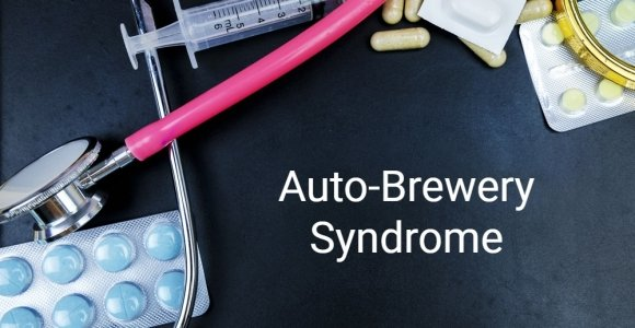 What is Auto-Brewery Syndrome?