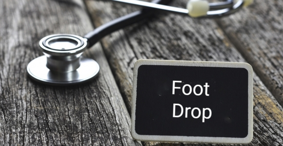 What Is Foot Drop?