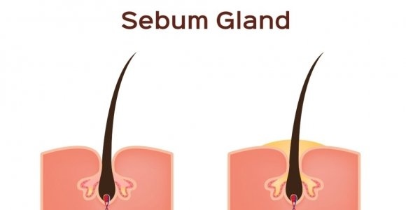 Sebum and the Sebaceous Glands