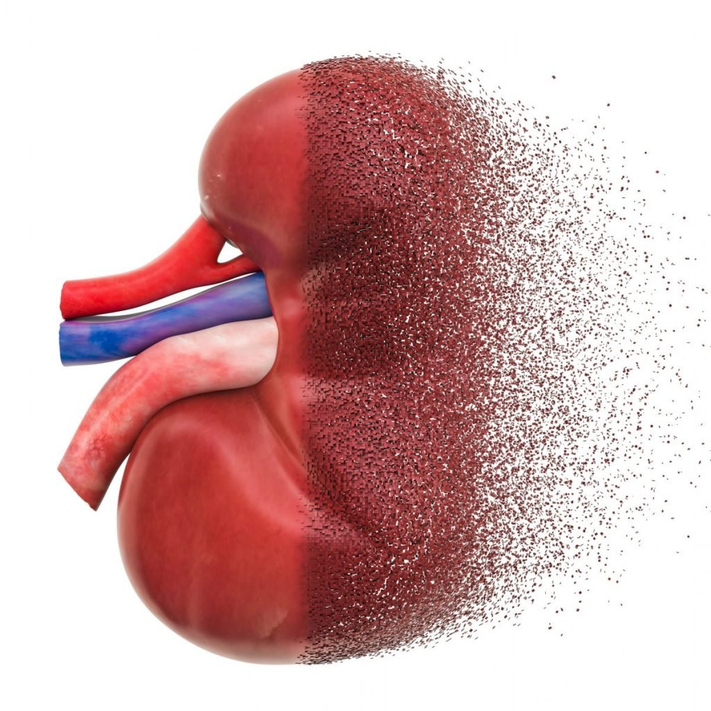 Kidney-disease dopamine urea
