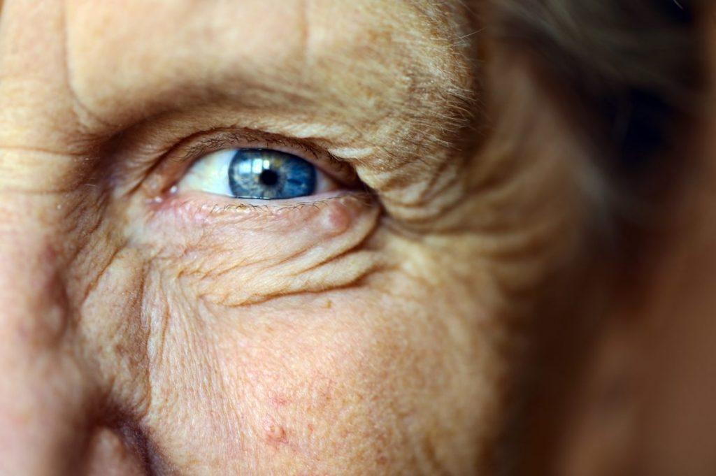 Antioxidants Aging Vision Deterioration Macular