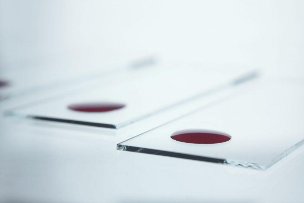 Blood Test Diagnosis