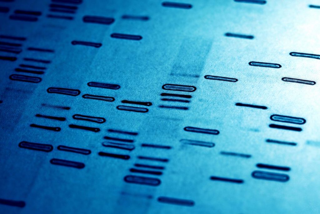 Diagnosis Genetic Testing