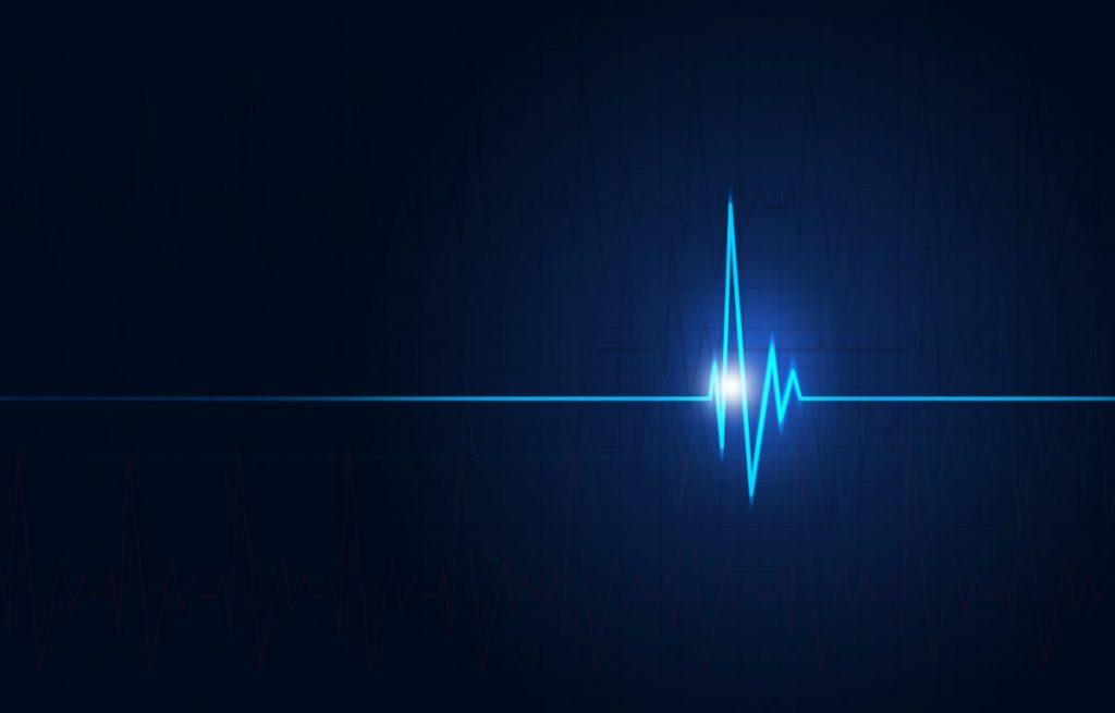 V-tach Ventricular Tachycardia