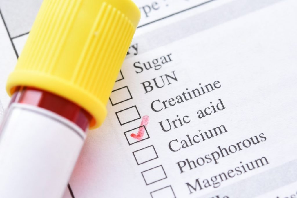 Gout Risk Factors Medication Genetics