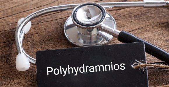 Polyhydramnios: Excessive Accumulation of Amniotic Fluid