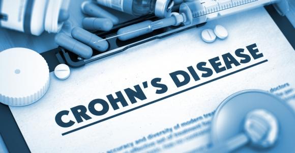 10 Symptoms of Crohn's Disease