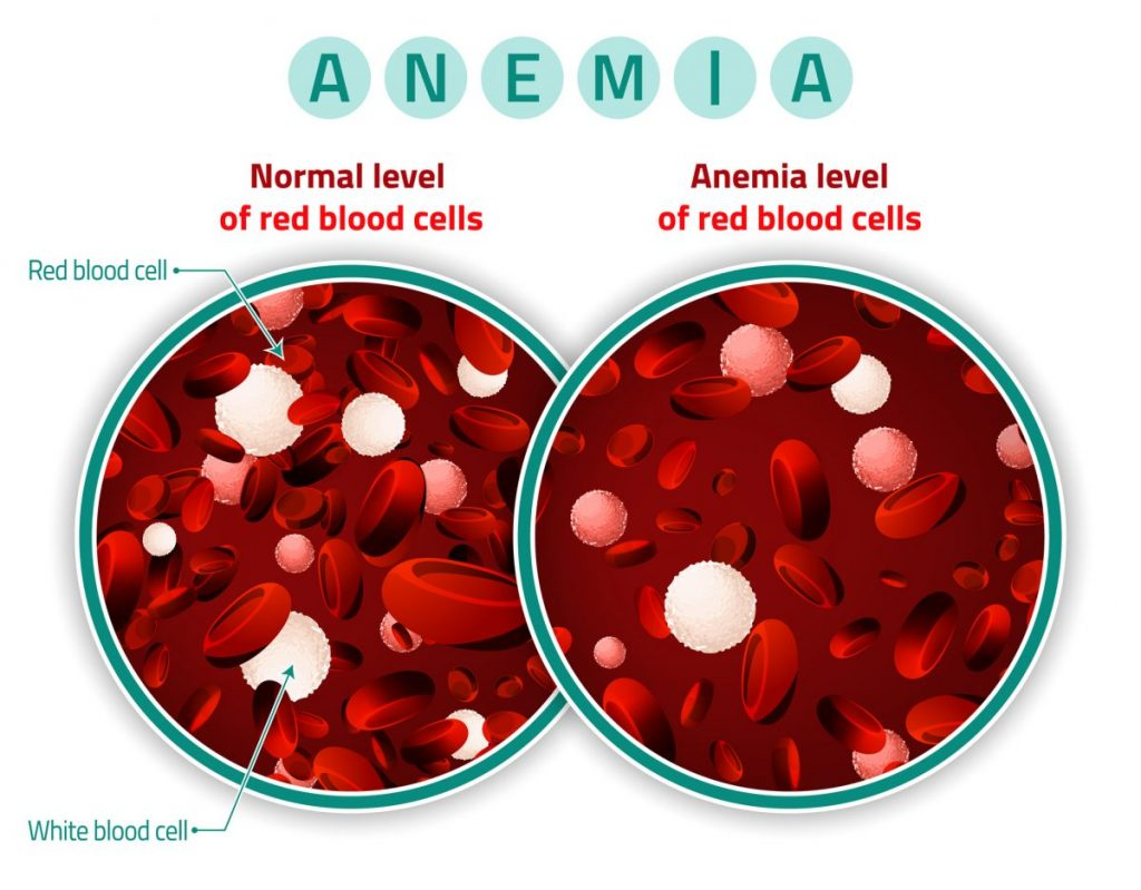 Anemia Low Red Blood Cells