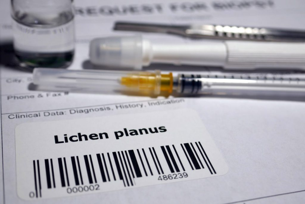 Lichen Planus Related Diseases