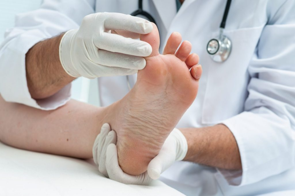 doctor lift toenail oral antibiotics
