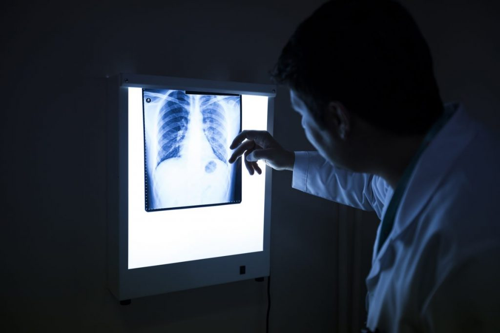 type C lung disease
