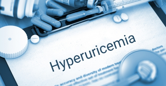 Hyperuricemia and Its Causes